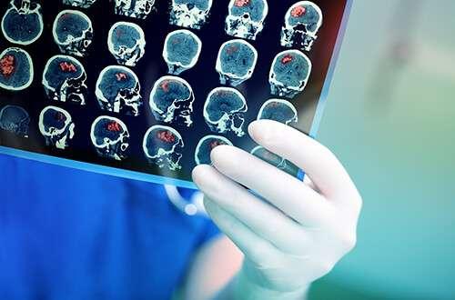 Neuro science careers in retail
